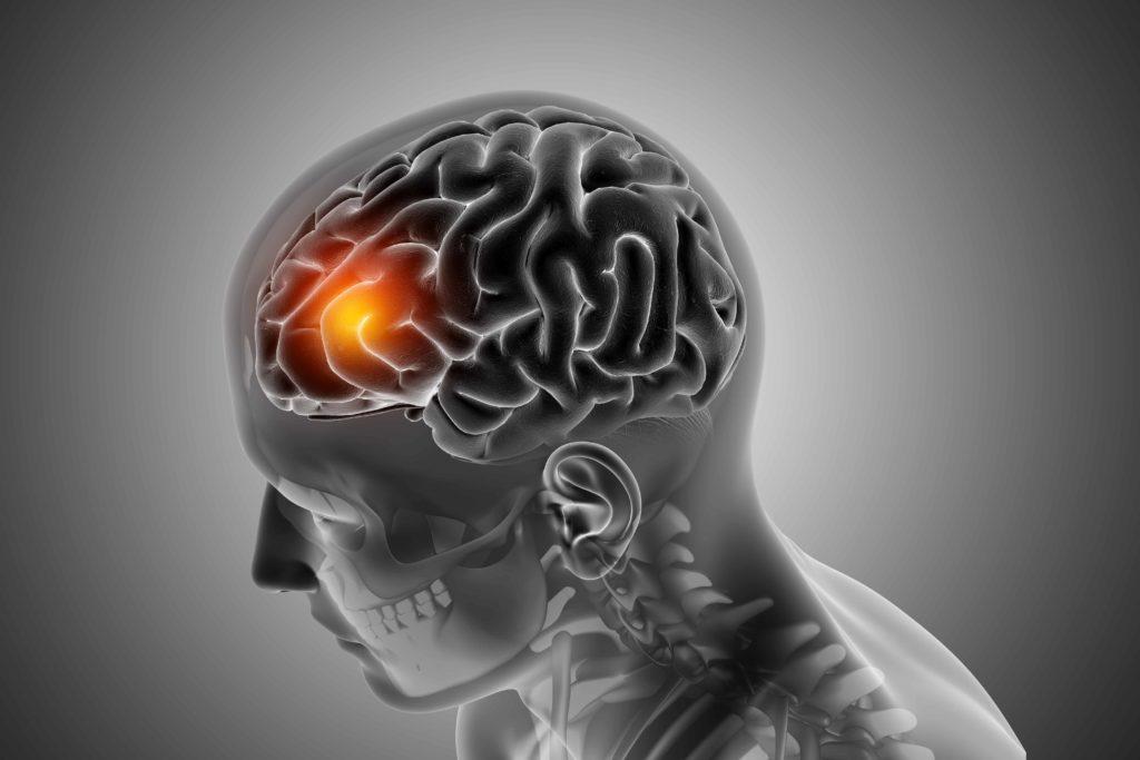 dano cerebral confabulaciones • Neurita 📣 Marketing Sanitario