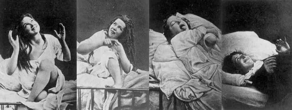 Hysteria • Neurita   Blog de Psicología